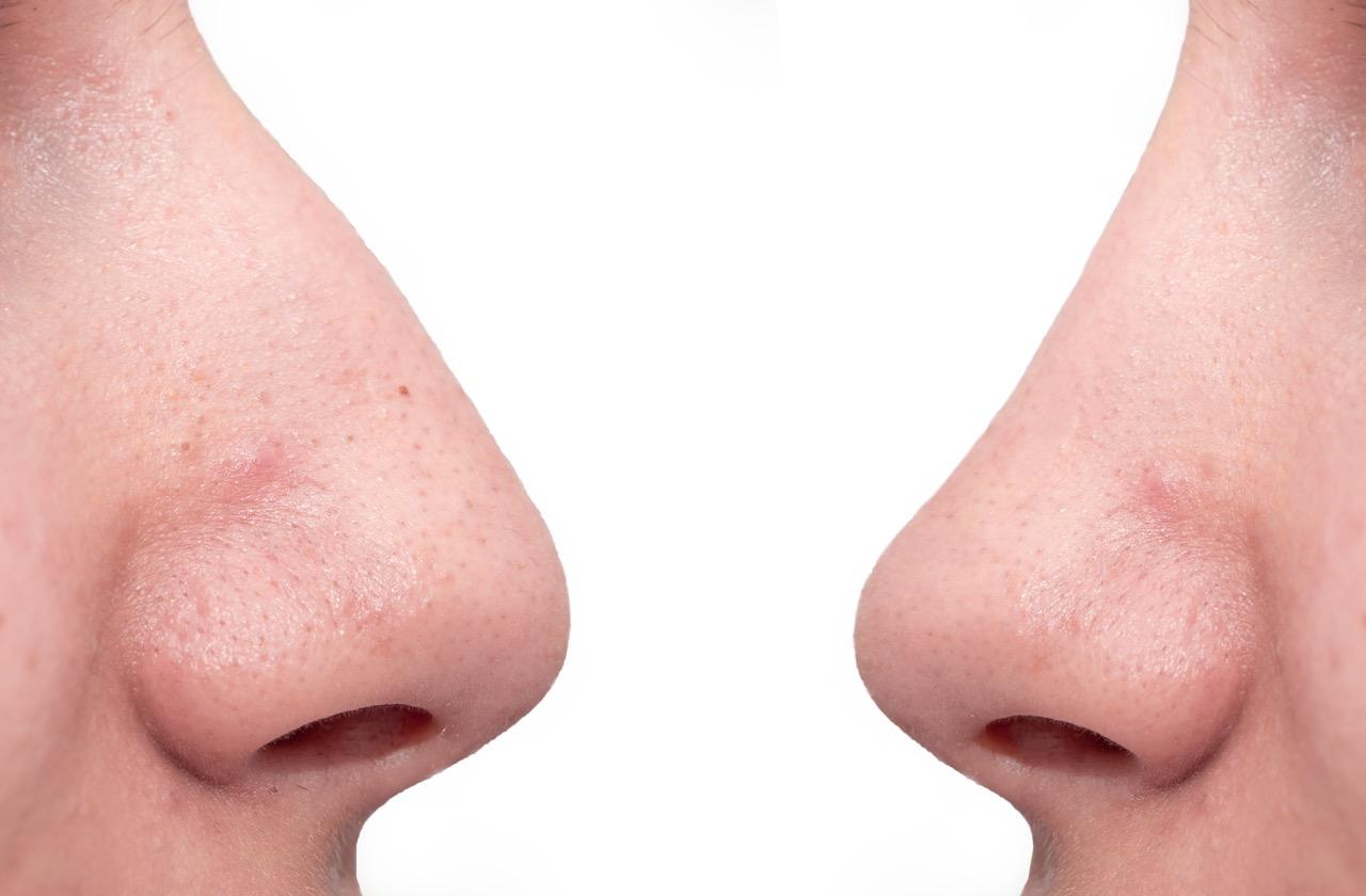 鼻毛のレーザー脱毛はできる?痛み・効果・照射範囲についても解説